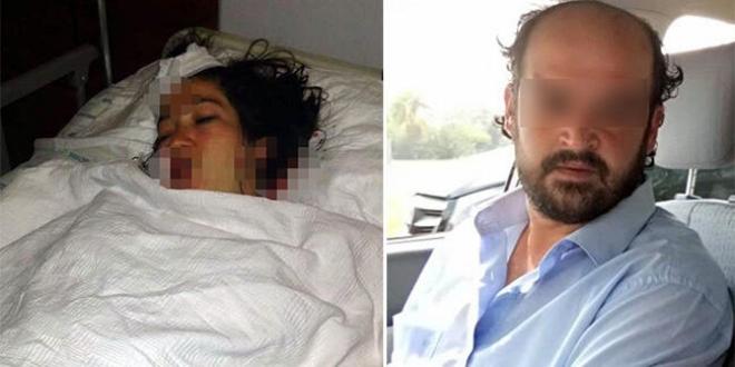 Doğum Yapan Karısını Hastane Odası'nda 7 yerinden Bıçakladı